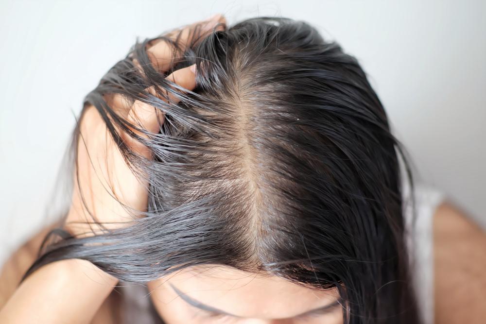 Saç Dökülmesi – Saç Mevsim Değişikliği
